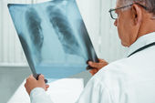 Senior doctor is analyzing x-ray image — Stock Photo