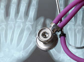 : X-ray and stethoscope — Stock Photo
