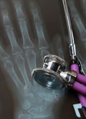 Stethoscope on an x-ray picture — Stock Photo