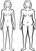 Set of female body types — Stock Photo