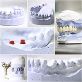 Dental dentist objects collage — Stock Photo