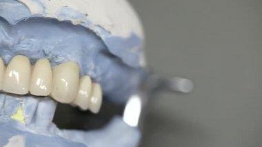 Dental dentist objects implants — Stock Video