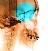 X-Ray scan human — Stock Photo