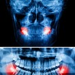 X-Ray scan human for teeth — Stock Photo #49630621