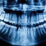 Photo X-Ray scan human — Stock Photo #50027143