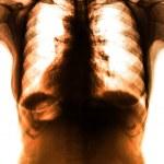 Photo X-Ray scan human — Stock Photo #50027295