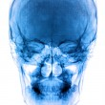 Photo X-Ray scan human — Stock Photo #50280237