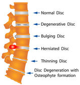 Spine conditions — Stockvector