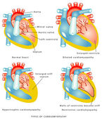 Diseases of the Heart Muscle — Stock Vector