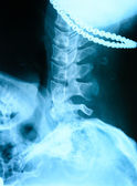 X-ray of the neck — Stock Photo