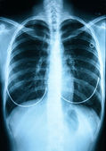 X-Ray Image Of Human Chest — Stock Photo