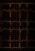 Heartbeat — Stock Photo