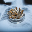 Ashtray with x-ray picture — Stock Photo
