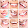 Beautiful smiling woman and men. Dental health — Stock Photo