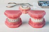 Dentures and braces — Stock Photo