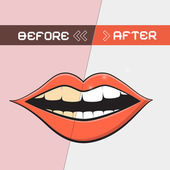 Retro vektor mun illustration - rengöring tänder symbol — Stockvektor