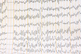 Cardiogram as background — Stock Photo
