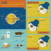 Eye diseases set — Stock Vector