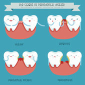 The stages of periodontal disease — Stock Vector
