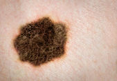 Melanoma, skin cancer, mole. High definition image. — Stock Photo