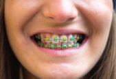 Colored braces — Stock Photo