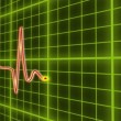 Stock Video: EKG cardio heart beat