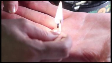 Moxa is placed on a hand and fired with match. Smoke and fume from moxa — Stock Video