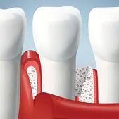 Dents et gencives — Photo