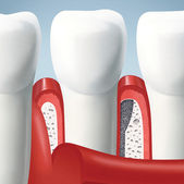 Teeth and gums — Stock Photo