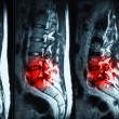 Stock Photo: Magnetic resonance imaging (MRI) of lumbo-sacral spines demonstr