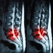 Magnetic resonance imaging (MRI) of lumbo-sacral spines demonstr — Stock Photo #39863333
