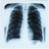 X-ray of male chest during pneumonia — Stock Photo
