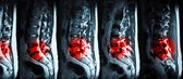 Magnetic resonance imaging (MRI) of lumbo-sacral spines demonstr — Stock Photo