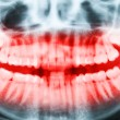 Close-up x-ray image of teeth and mouth with all four molars ver — Stock Photo #39874129