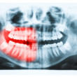 Panoramic x-ray image of teeth and mouth with all four molars ve — Stock Photo #39874325