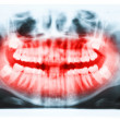 Panoramic x-ray image of teeth and mouth with all four molars ve — Stock Photo #39874389