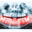 Panoramic x-ray image of teeth and mouth with all four molars ve — Stock Photo #39874533