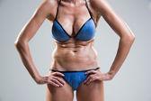 Tummy cellulite. poor posture. — Stock fotografie