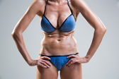Tummy cellulite. poor posture. — Foto Stock