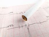 Cardiograma — Fotografia Stock
