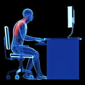 3d rendered medical illustration - wrong sitting posture — Stock Photo