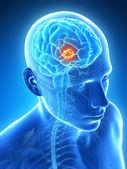 3d rendered illustration - brain tumor — Stock Photo