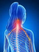 3d rendered illustration of a painful neck — Stock Photo