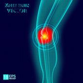 Kneee pain — Stock Vector