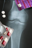 MEDICATION FOR PAIN — Stock Photo