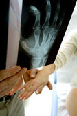RHEUMATOLOGY, ELDERY PERSON — Foto de Stock