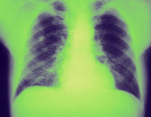 Revealed right upper lobe pneumonia — Stock Photo
