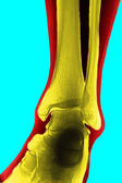 X-ray of the tibia — Stock Photo
