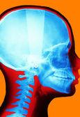 X-ray of the skull — Zdjęcie stockowe