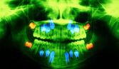 Diş röntgeni — Stok fotoğraf